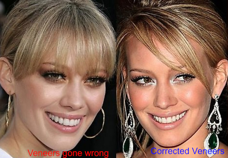 Can you really skip teeth whitening and braces with Porcelain Veneers?